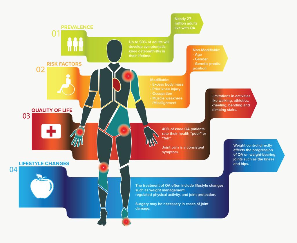 Osteoarthritis Infographic