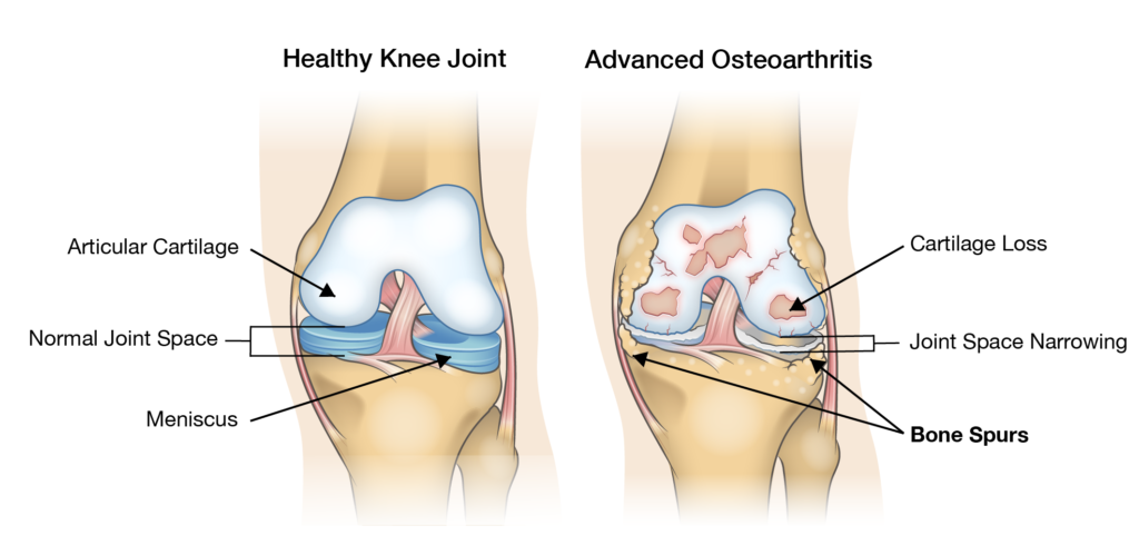 Bone spurs in the knee - Everything you need to know and more -