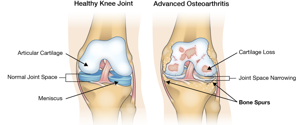 Healthy Knee Joint Versus Unhealthy Arthritic Knee Joint