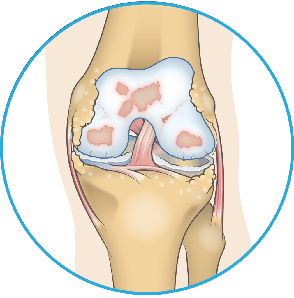 Bone Spurs in the Knee Joint