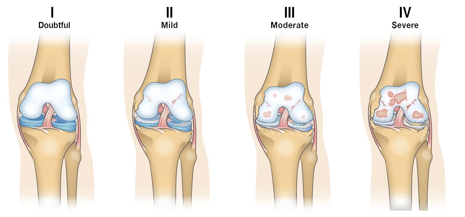 Guide to Severe Knee Arthritis (Osteoarthritis) , Spring