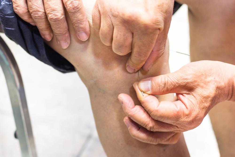 Acupuncture Arthritis Knee Ankle Pain - Acupuncture ...