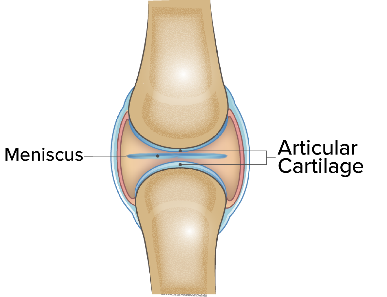 64548cad64 Inside a healthy knee, between the bones, there is soft spongy tissue  called cartilage. Cartilage comes in two types hyaline and articular.