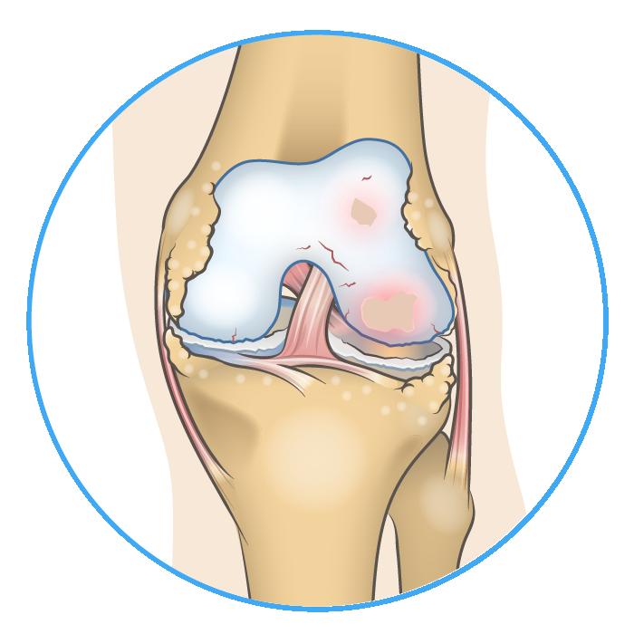 Knee Anatomy Lateral Knee Arthritis