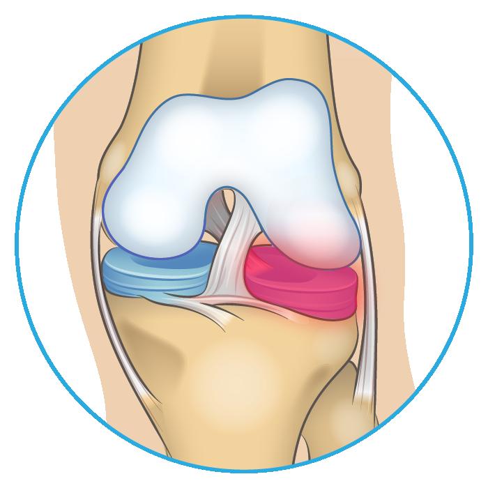 Knee Anatomy Meniscus Tear