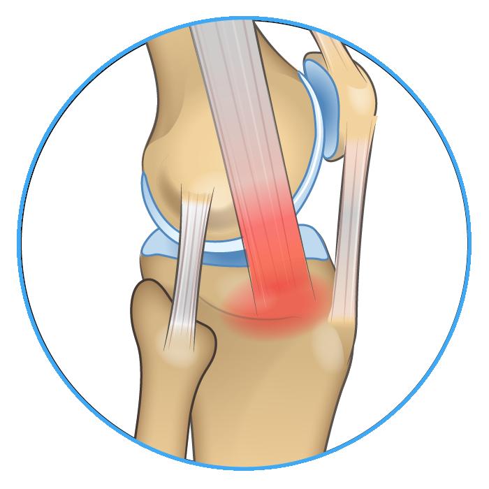 Knee Anatomy IT Band Pain