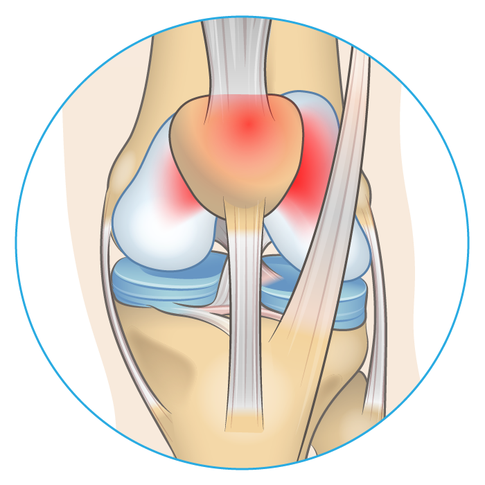 Knee anatomy diagram showing where patella femoral pain syndrome develops