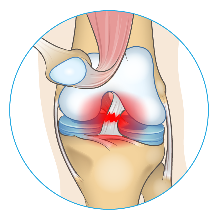Knee anatomy diagram showing an injured ACL.
