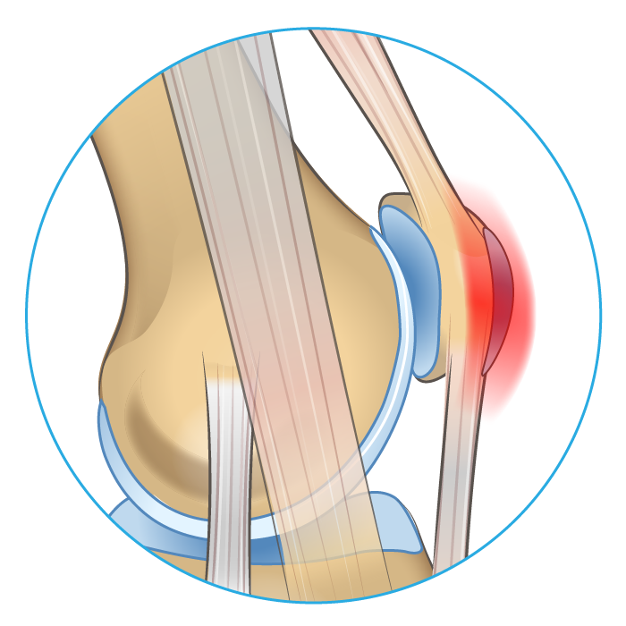 Knee anatomy diagram showing an inflamed pre-patellar bursa.