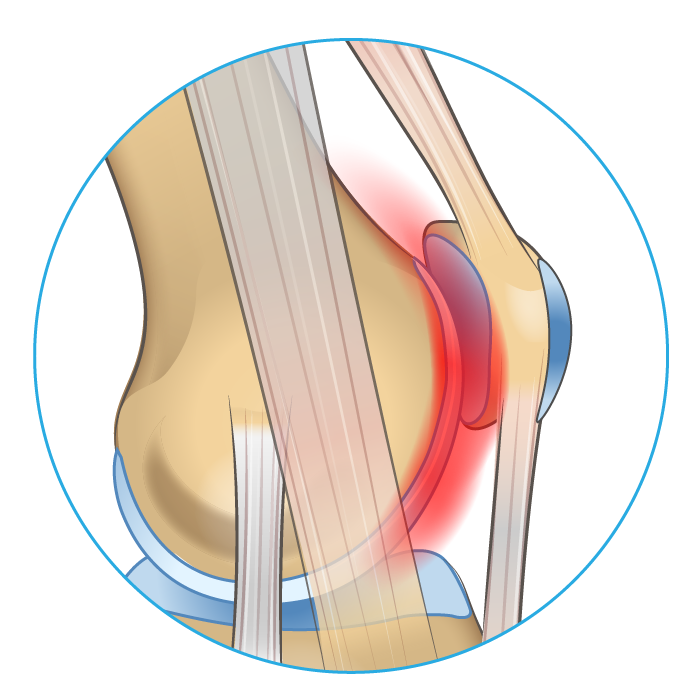 Knee anatomy diagram showing where on the joint chondramalacia patella cause pain