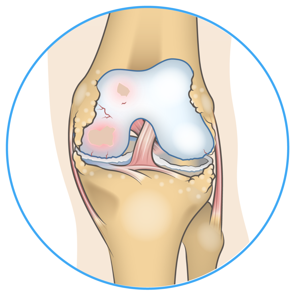 Medial Compartment Osteoarthritis Anatomy
