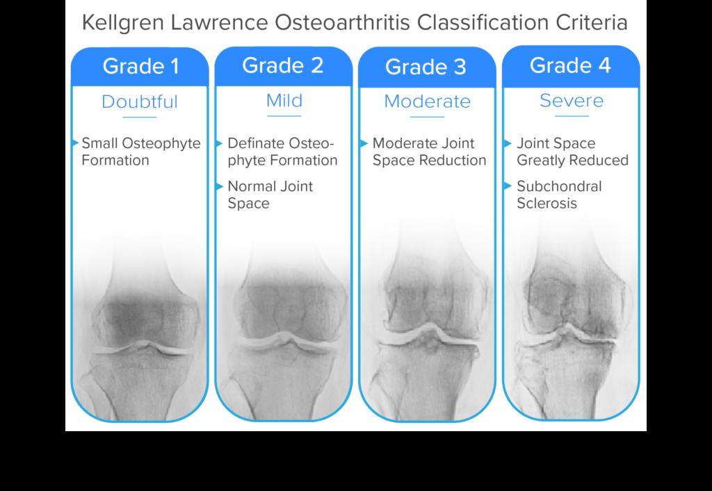 Kellgren Lawrence Osteoarthritis Grading Criteria for Knees