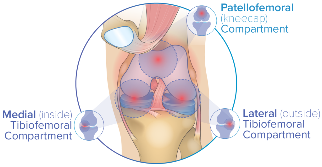 The Knee has three compartments: the patellofemoral, left tibiofemoral and right tiobiofemoral