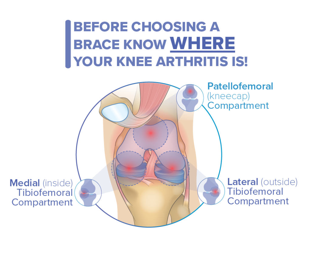 Arthritis patterns influence knee brace selection