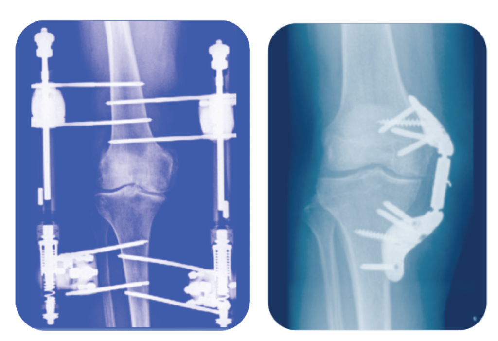 surgical joint distraction techniques could enhance stem injections for knee arthritis