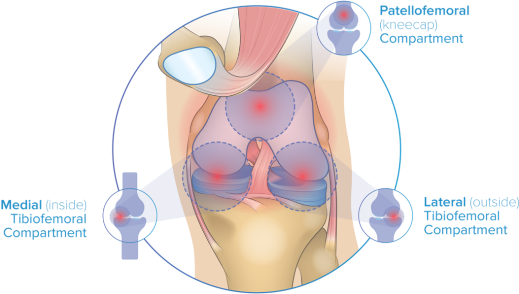 Diagram showing the three compartments of the knee.