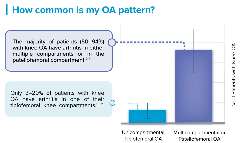 most common knee osteoarthritis is multicompartmental or patellofemoral OA
