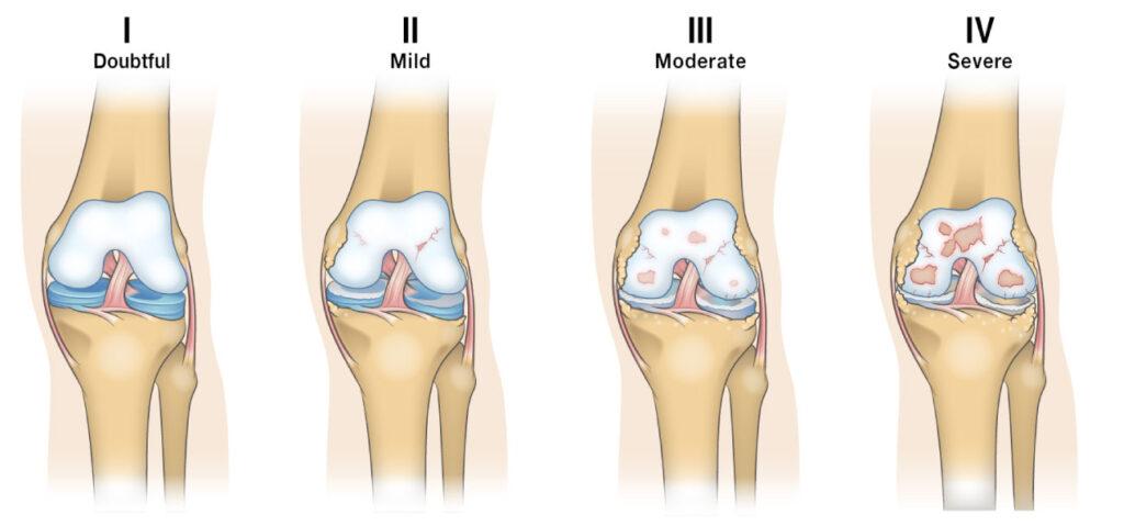 Kellgren-Lawrence classification system for knee osteoarthritis