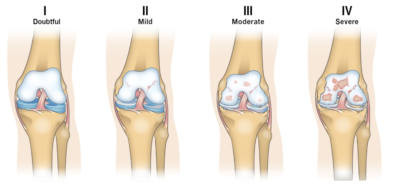 Kellgren-Lawrence classification system for knee osteoarthritis