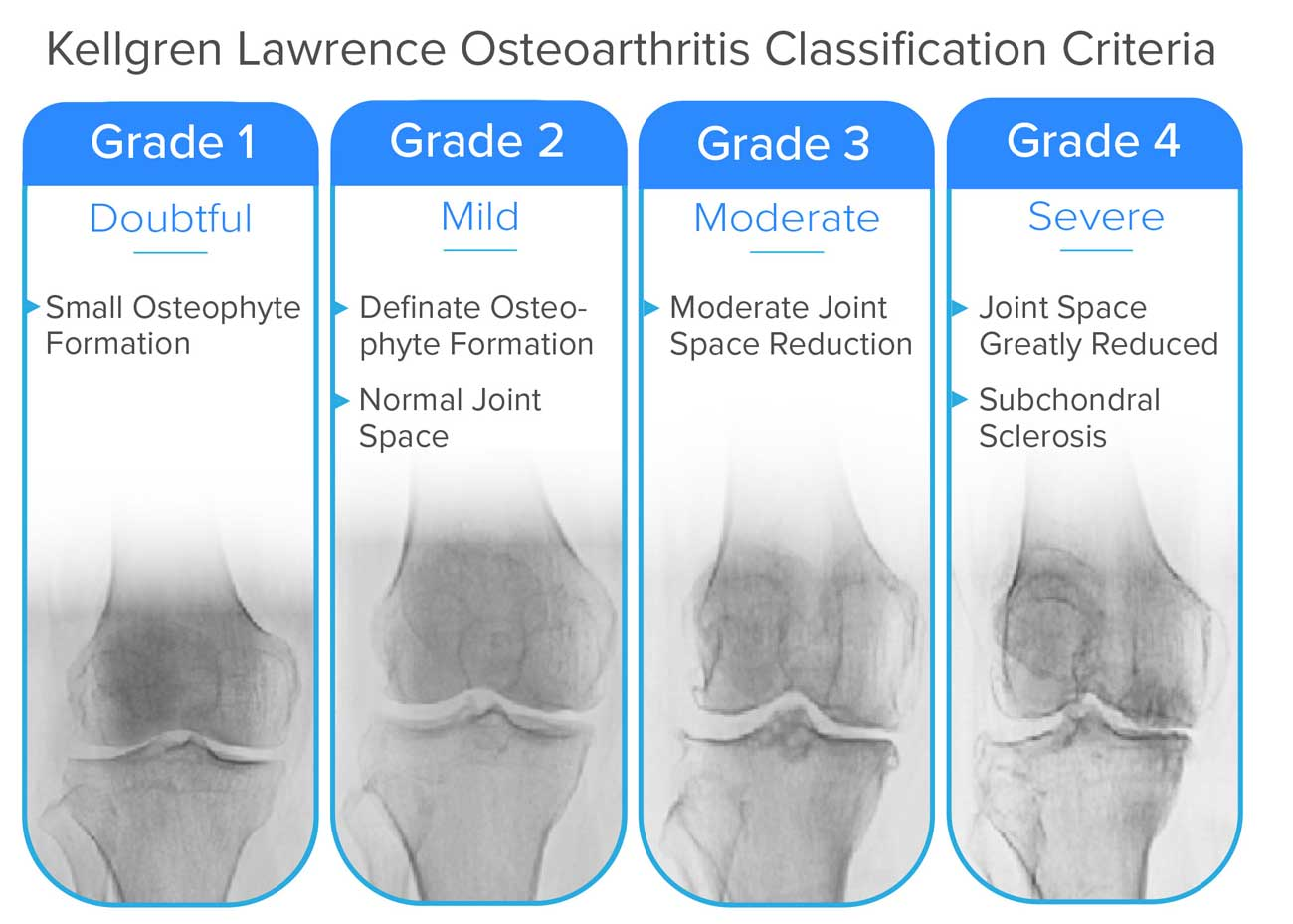 Osteoarthritis grade classifications chart