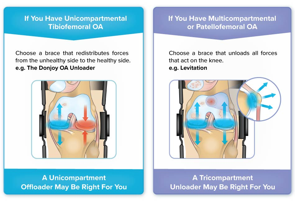 unicompartment offloaders like the donjoy knee brace vs tricompartment unloader like levitation