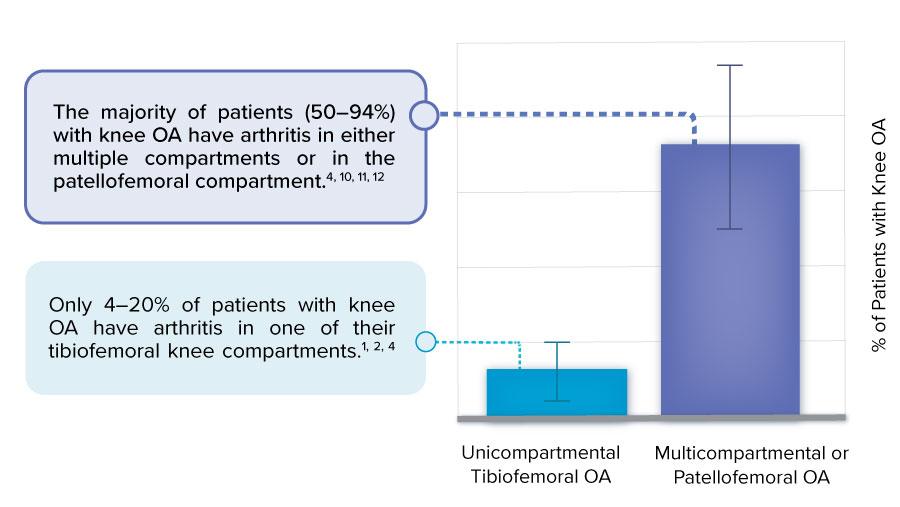 multicompartmental or patellofemoral knee osteoarthritis is more common than unicompartmental tibiofemoral OA