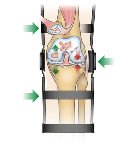 Diagram showing the effect of a uni-compartment offloader knee brace for osteoarthritis.