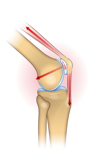 Diagram showing the forces acting on the patellofemoral knee compartment.