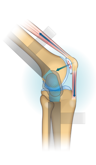 Diagram showing the how a tri-compartment unloader knee brace reduces forces acting on the patellofemoral knee compartment.