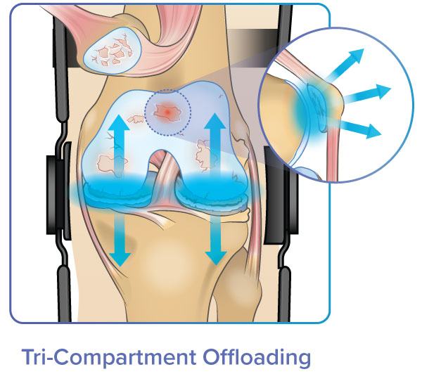 tri-compartment offloader reduces forces across entire knee