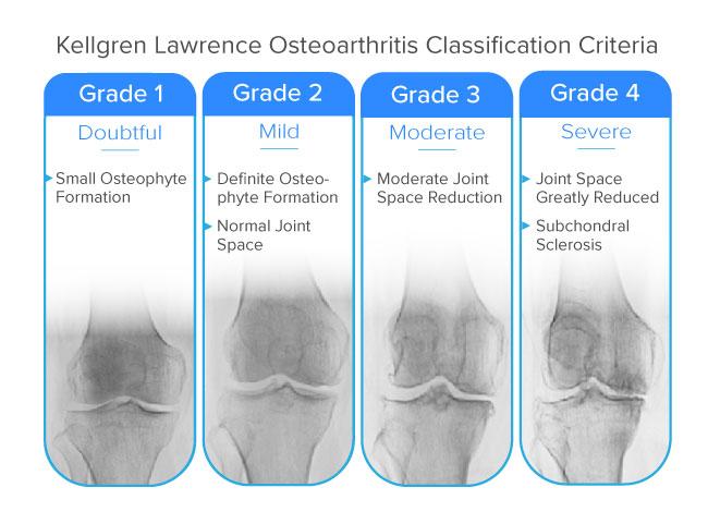 kellgren lawrence classification of bone on bone knee pain and osteoarthritis