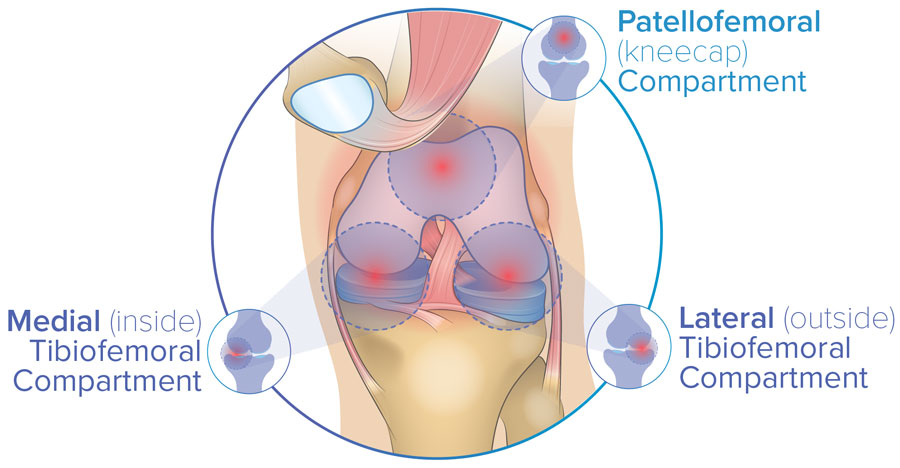 knee compartments include the patellofemoral knee joint and tibiofemoral joints