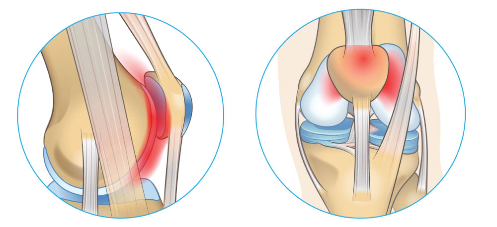 patellofemoral arthritis is osteoarthritis or damage to the articular cartilage between the kneecap and femur compartment