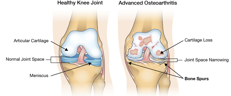 healthy knee joint compared to advanced osteoarthritis with patellofemoral arthritis