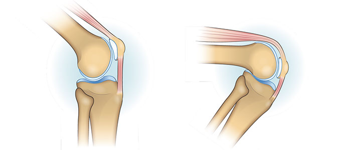 patellofemoral-knee-joint-feature-image